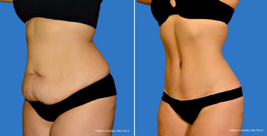 How much did you pay for a tummy tuck in uk