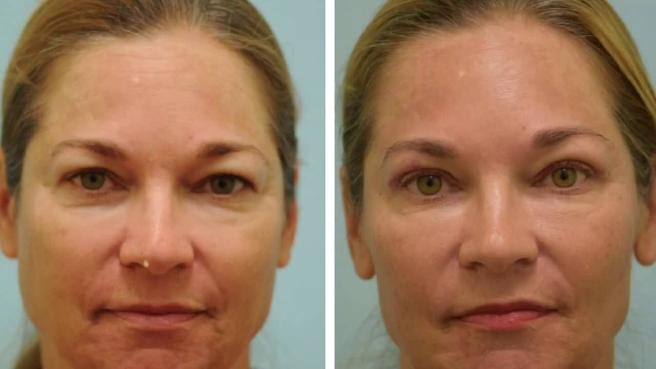 Blepharoplasty UK